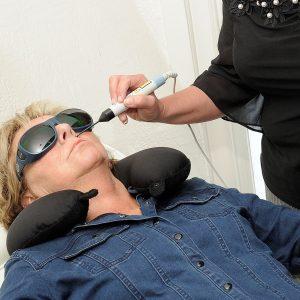 Client ondergaat lasertherapie om te stoppen met roken