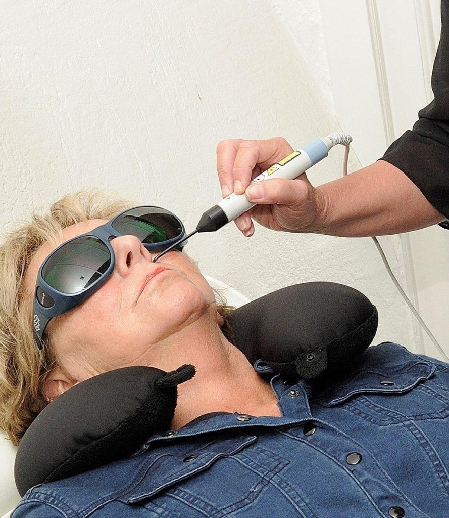 behandelen van een vrouw voor stoppen met roken lasertherapie